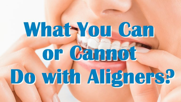 What You Can or Cannot Do with Aligners?